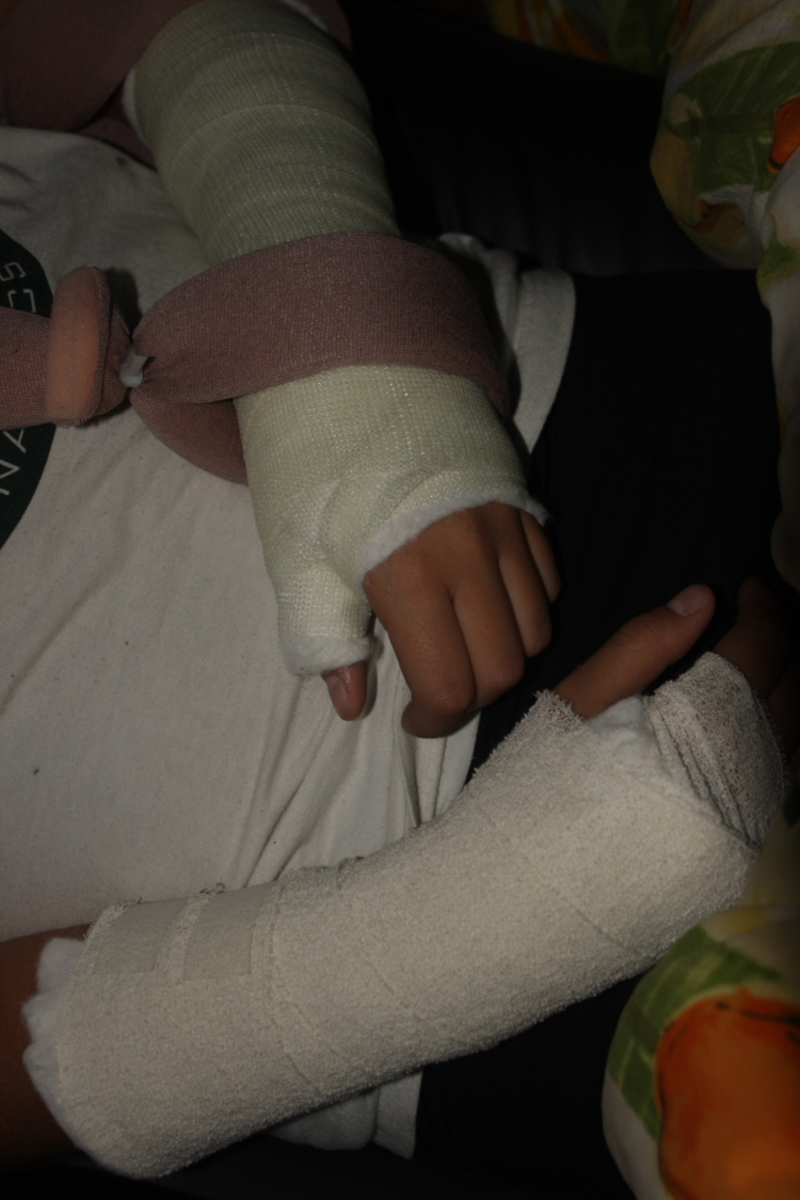 2 broken arms  - Things Don't Go Away Unless You Help Them